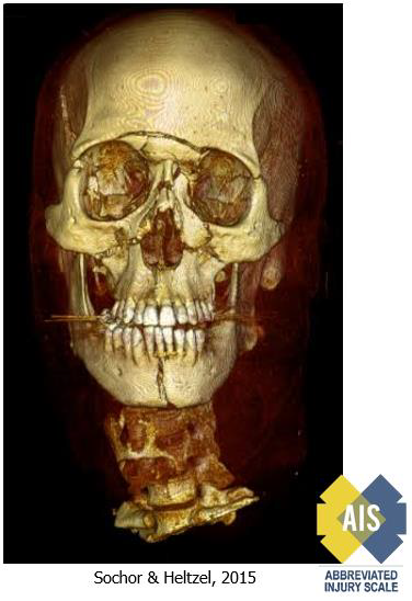 3D CT reconstruction, LeFort III facial fracture (Used with permission from the Association for the Advancement of Automotive Medicine.)